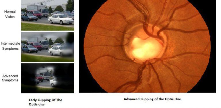 Glaucoma1-1-768x378