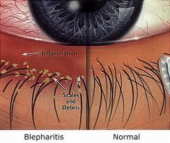 blepharitis-pictoral